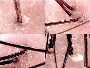 頭皮の皮脂線